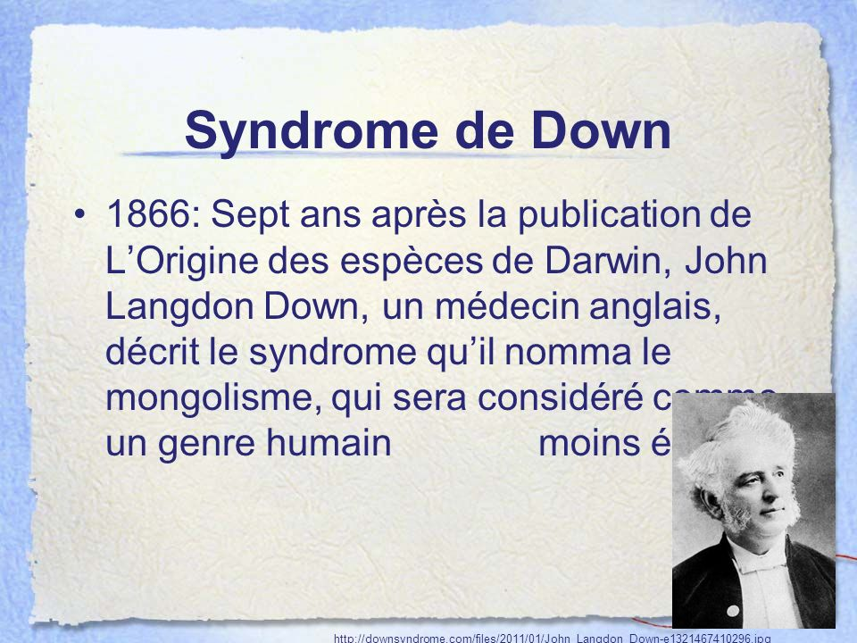 Syndrome de Down