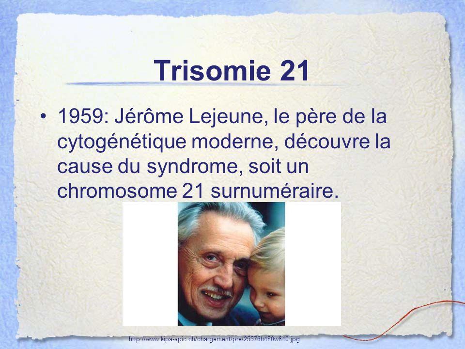 Trisomie 21 1959: Jérôme Lejeune, le père de la cytogénétique moderne, découvre la cause du syndrome, soit un chromosome 21 surnuméraire.