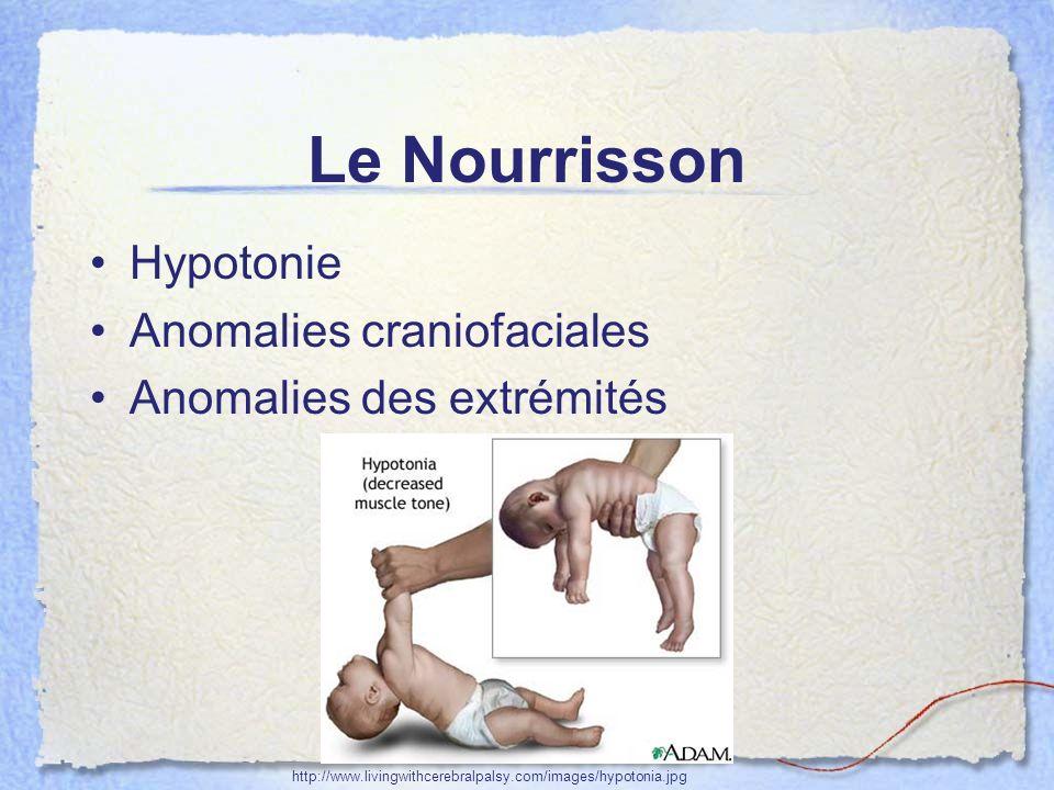 Le Nourrisson Hypotonie Anomalies craniofaciales