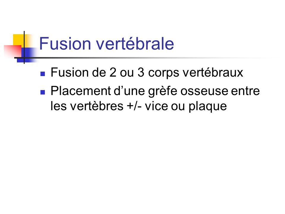 Fusion vertébrale Fusion de 2 ou 3 corps vertébraux