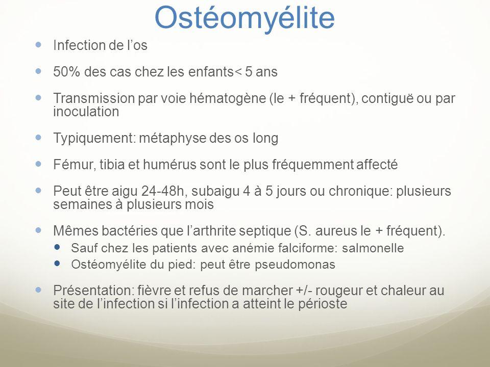 Ostéomyélite Infection de l'os 50% des cas chez les enfants< 5 ans