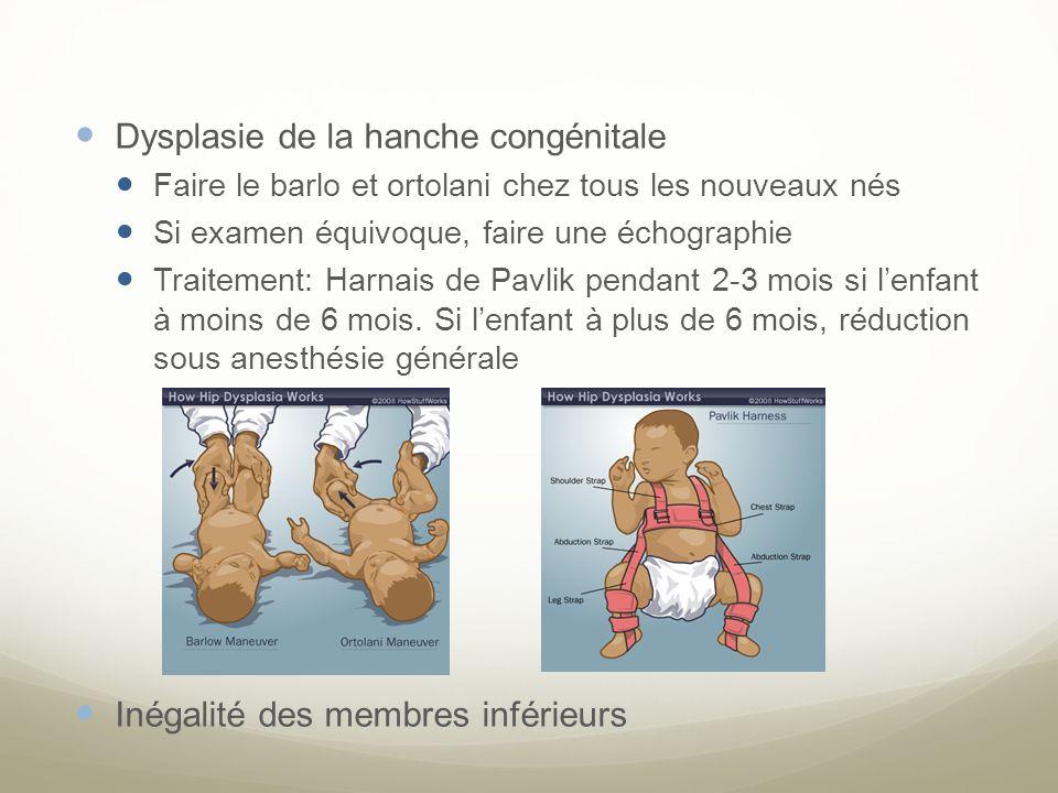 Dysplasie de la hanche congénitale
