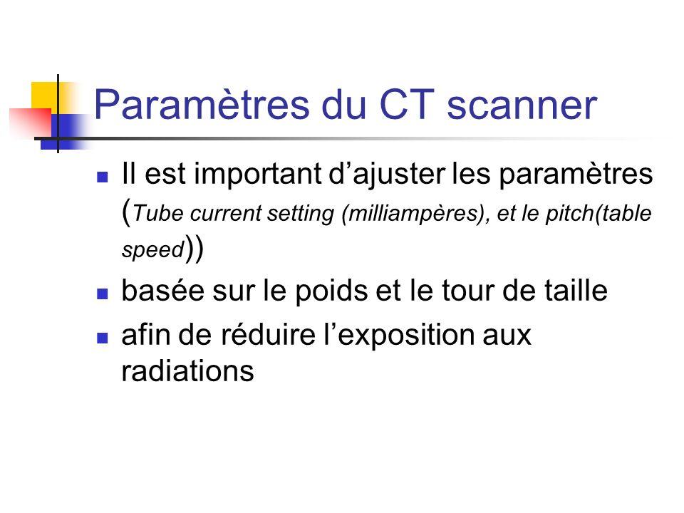 Paramètres du CT scanner