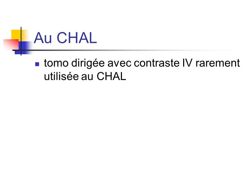 Au CHAL tomo dirigée avec contraste IV rarement utilisée au CHAL