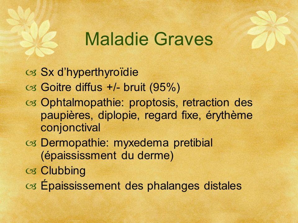 Maladie Graves Sx d'hyperthyroïdie Goitre diffus +/- bruit (95%)