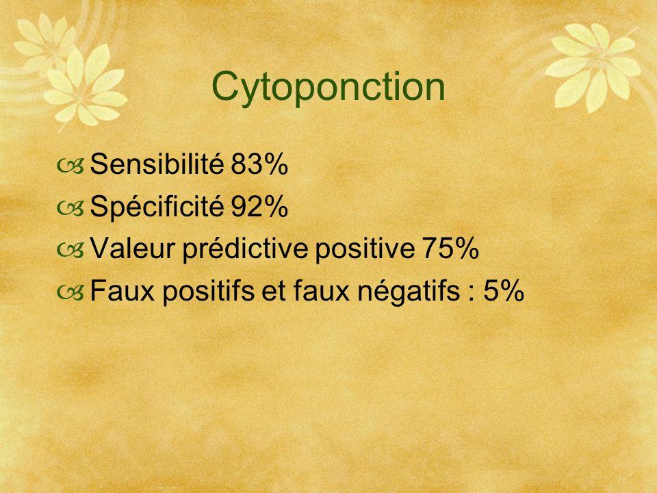 Cytoponction Sensibilité 83% Spécificité 92%
