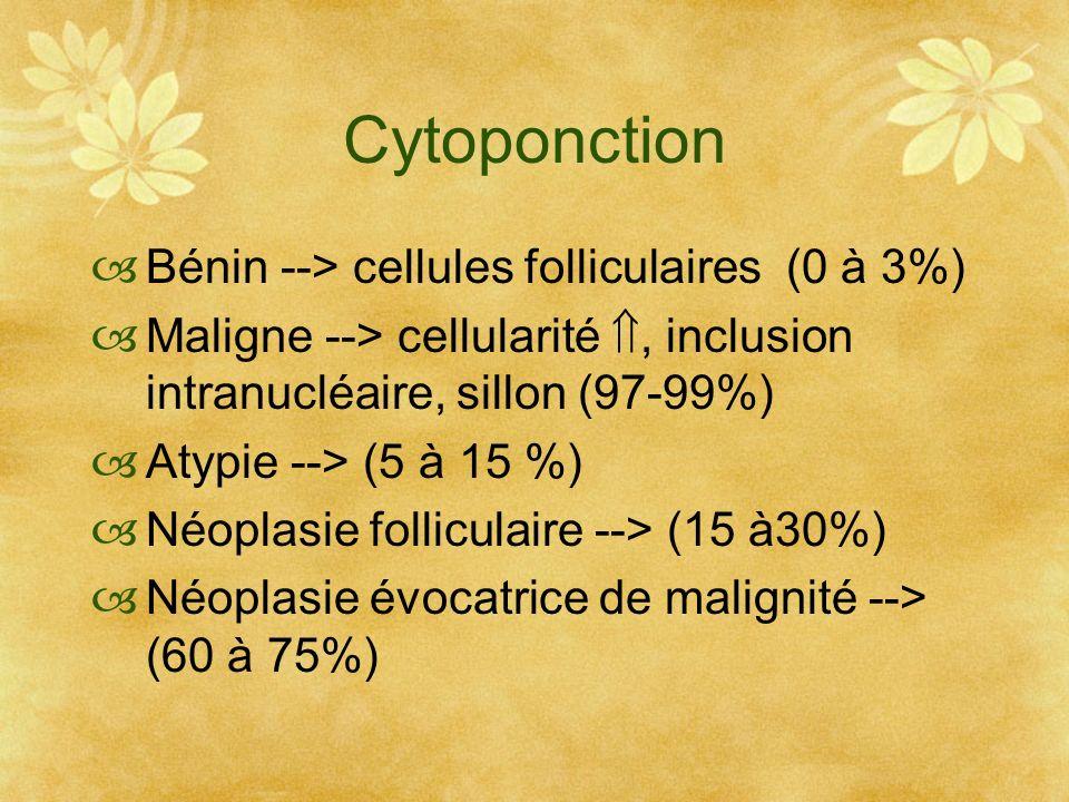 Cytoponction Bénin --> cellules folliculaires (0 à 3%)