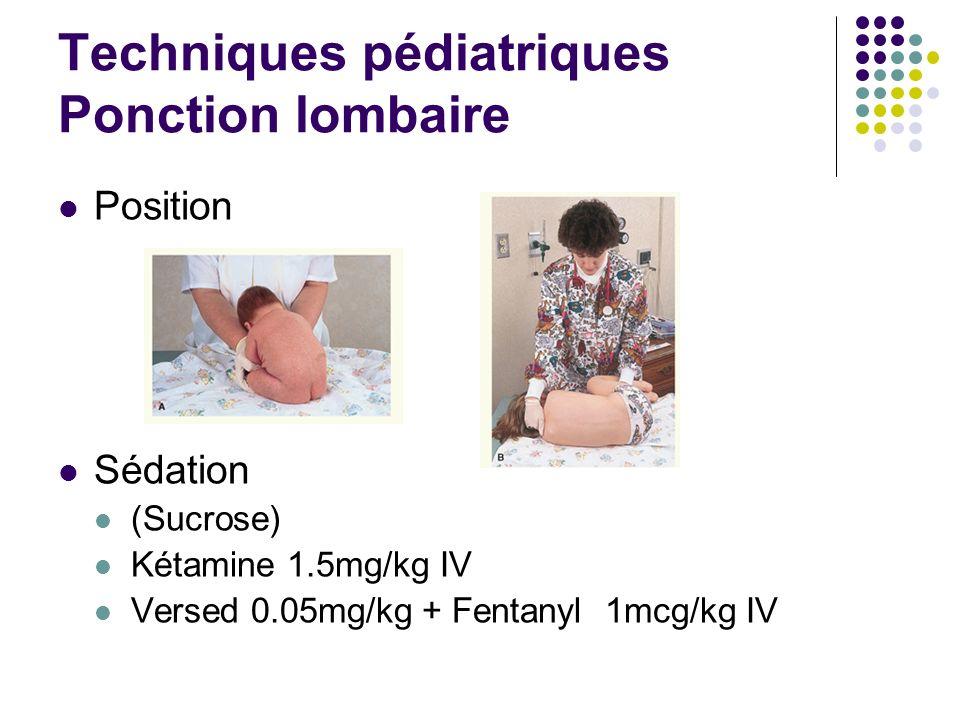 Techniques pédiatriques Ponction lombaire