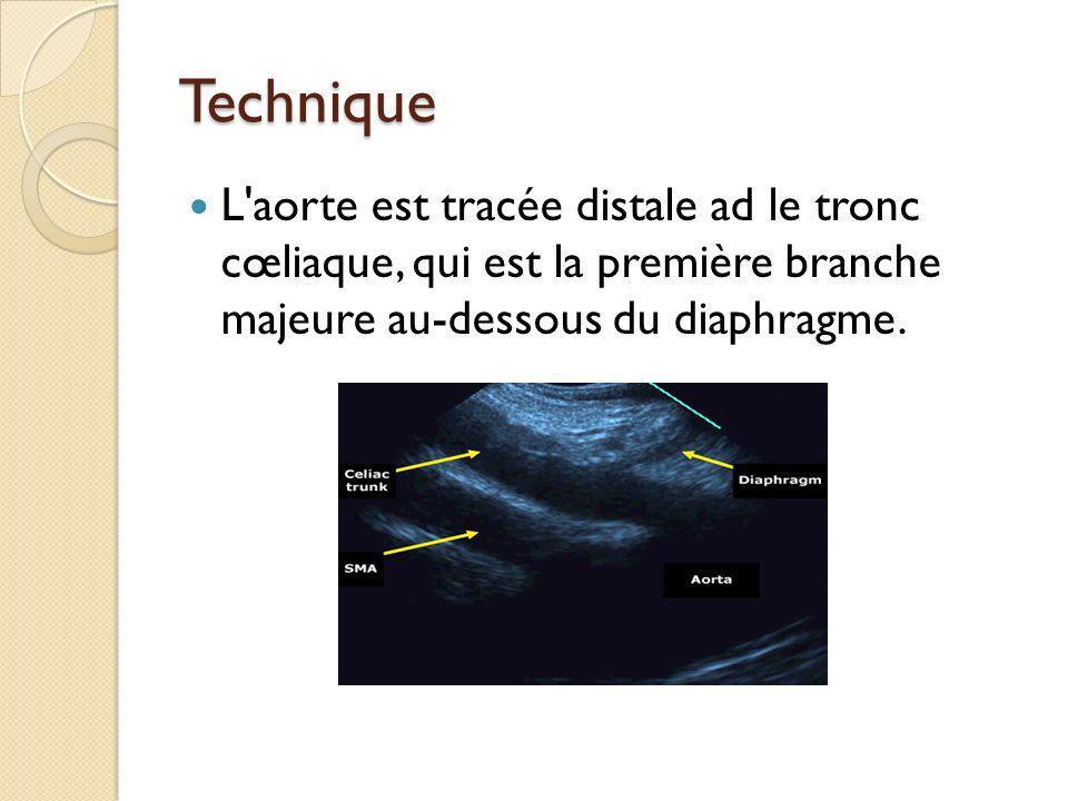 Technique L aorte est tracée distale ad le tronc cœliaque, qui est la première branche majeure au-dessous du diaphragme.