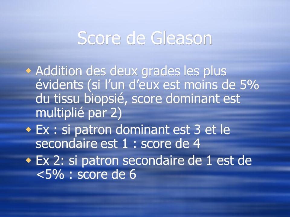 Score de Gleason Addition des deux grades les plus évidents (si l'un d'eux est moins de 5% du tissu biopsié, score dominant est multiplié par 2)