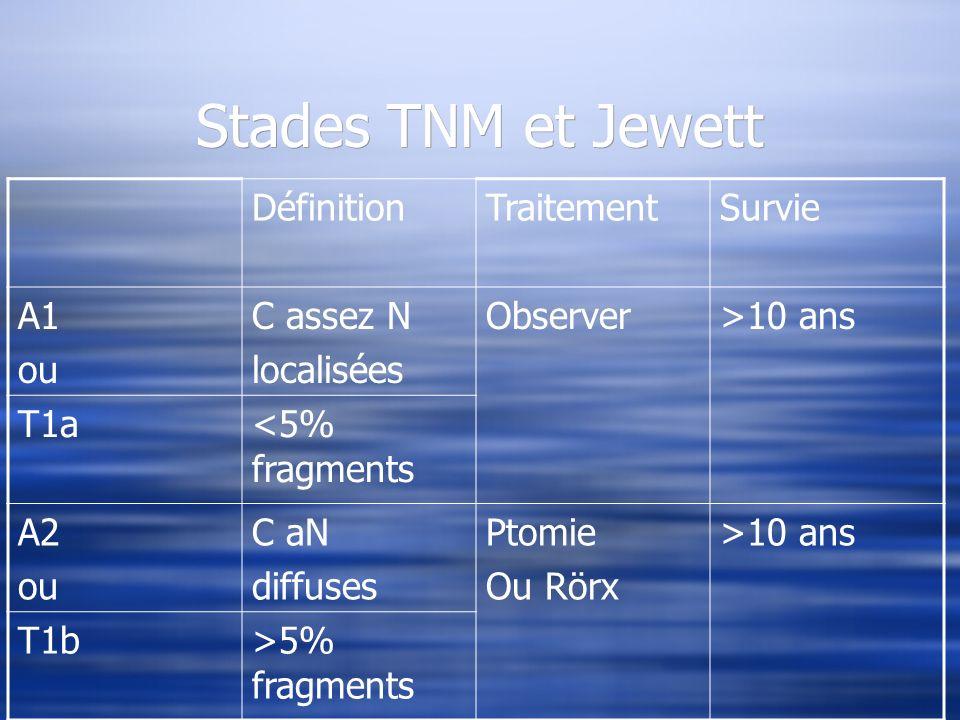 Stades TNM et Jewett Définition Traitement Survie A1 ou C assez N