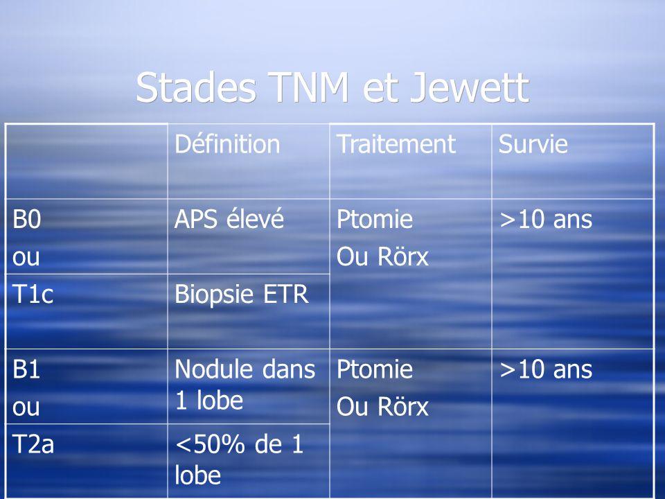 Stades TNM et Jewett Définition Traitement Survie B0 ou APS élevé