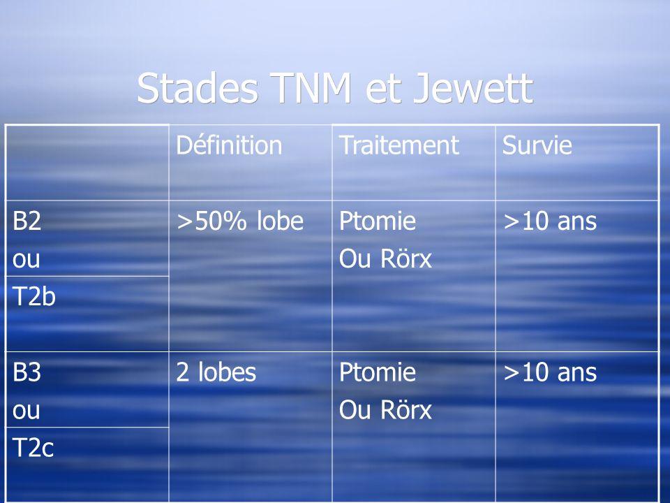 Stades TNM et Jewett Définition Traitement Survie B2 ou >50% lobe