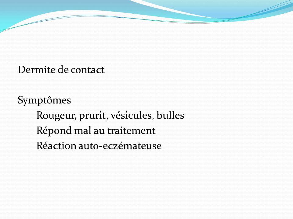Dermite de contact Symptômes Rougeur, prurit, vésicules, bulles Répond mal au traitement Réaction auto-eczémateuse