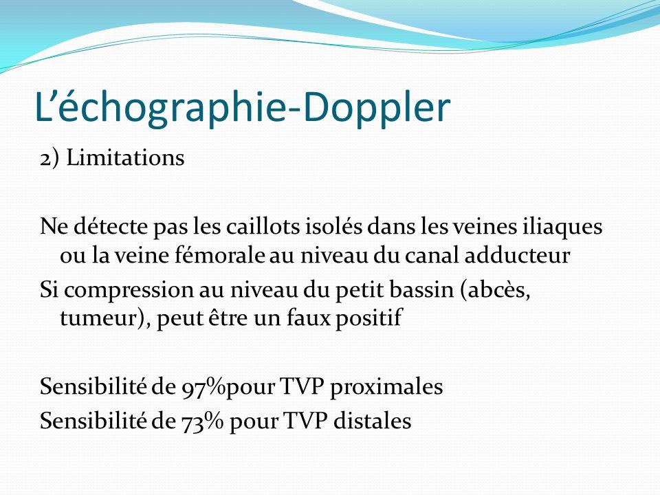L'échographie-Doppler