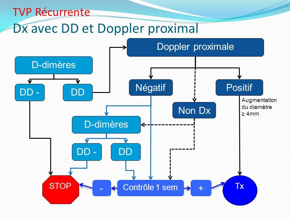 TVP Récurrente Dx avec DD et Doppler proximal