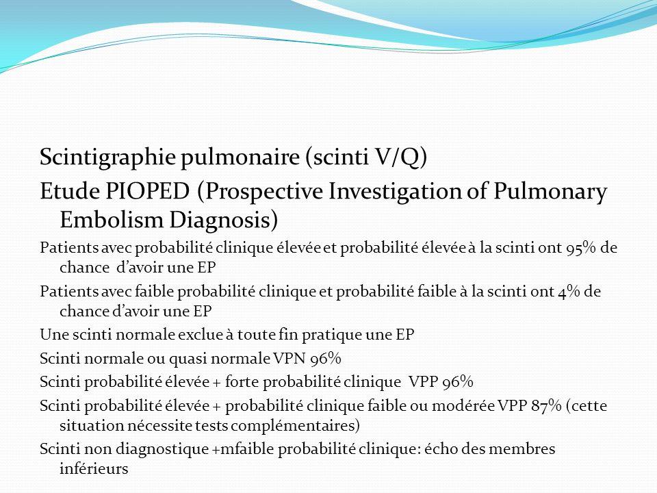 Scintigraphie pulmonaire (scinti V/Q)