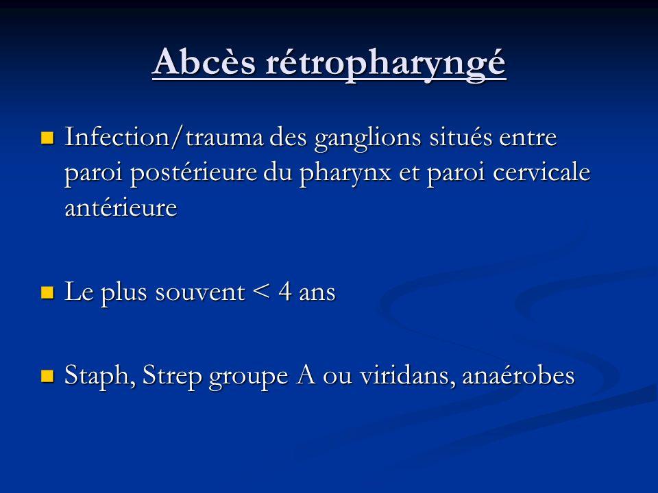 Abcès rétropharyngé Infection/trauma des ganglions situés entre paroi postérieure du pharynx et paroi cervicale antérieure.