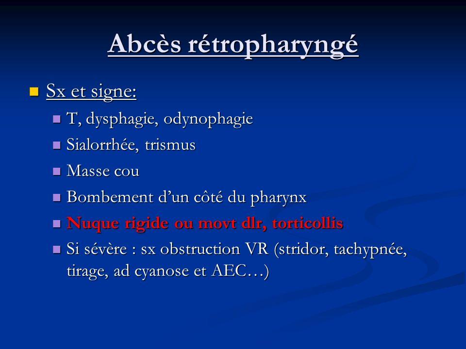 Abcès rétropharyngé Sx et signe: T, dysphagie, odynophagie