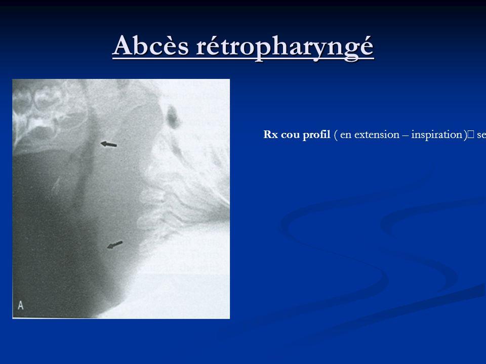 Abcès rétropharyngé Rx cou profil ( en extension – inspiration ) sensibilité 90% espace rétropharyngé > 1 CV ou 7mm.