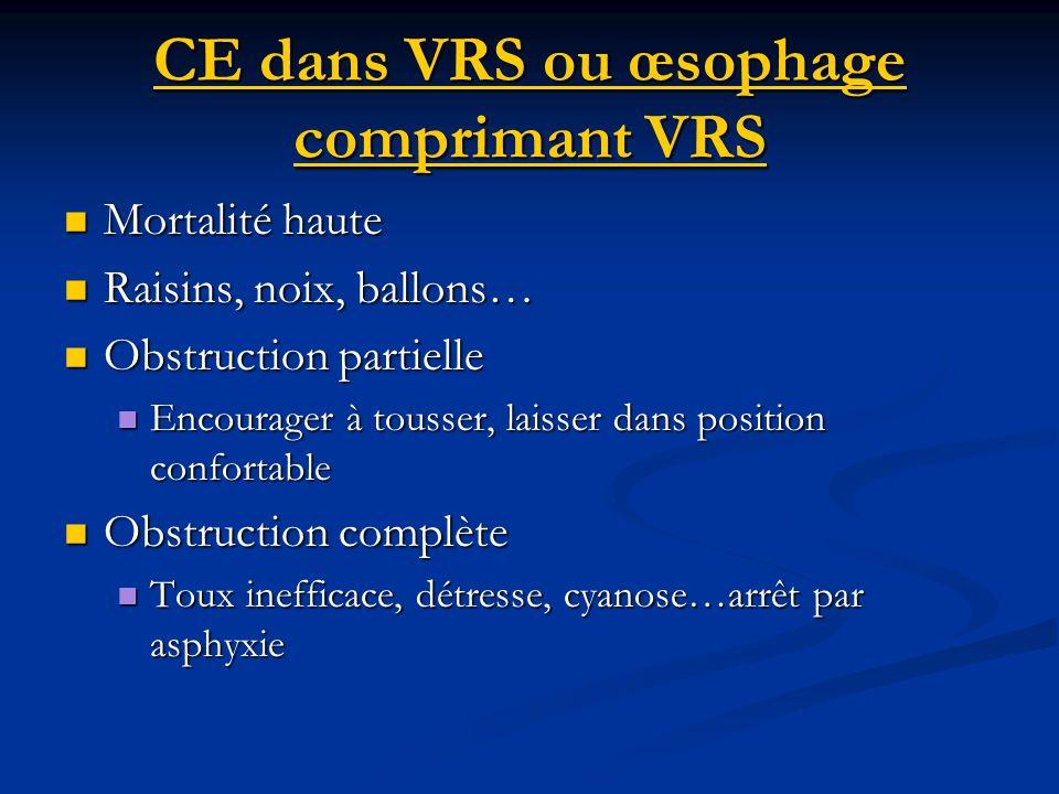 CE dans VRS ou œsophage comprimant VRS