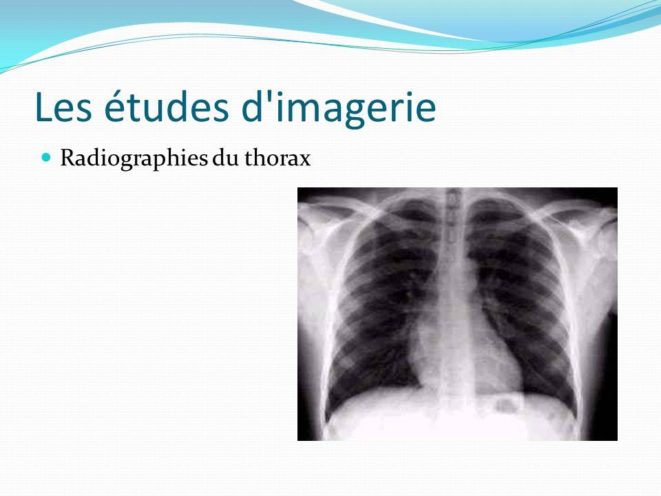 Les études d imagerie Radiographies du thorax