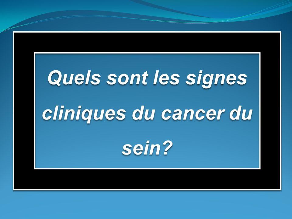 Quels sont les signes cliniques du cancer du sein