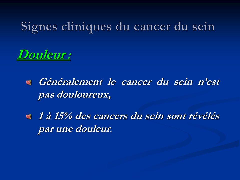 Signes cliniques du cancer du sein