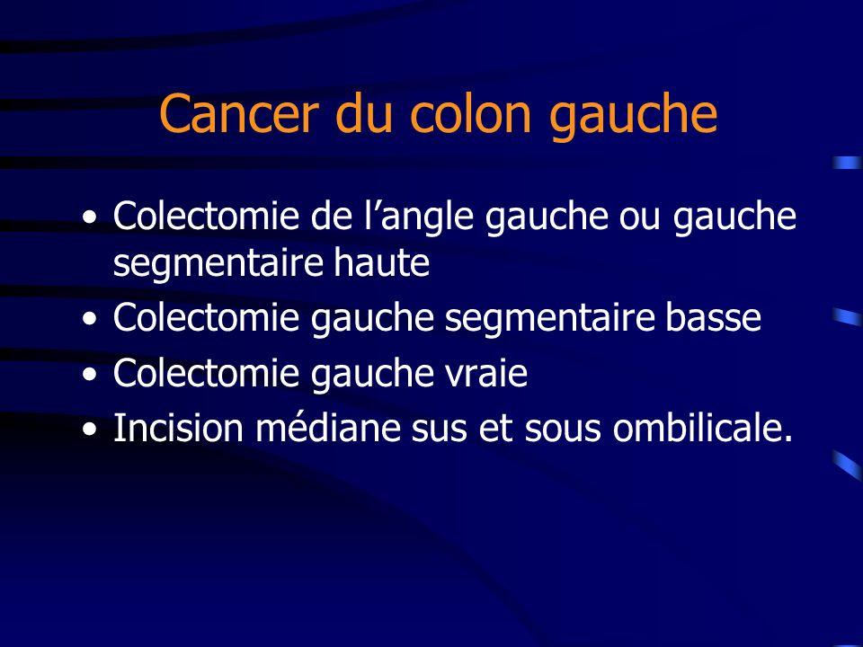 Cancer du colon gauche Colectomie de l'angle gauche ou gauche segmentaire haute. Colectomie gauche segmentaire basse.