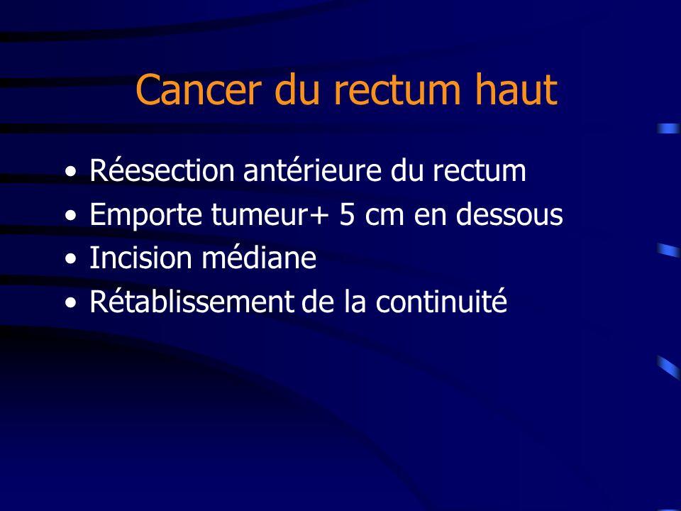 Cancer du rectum haut Réesection antérieure du rectum