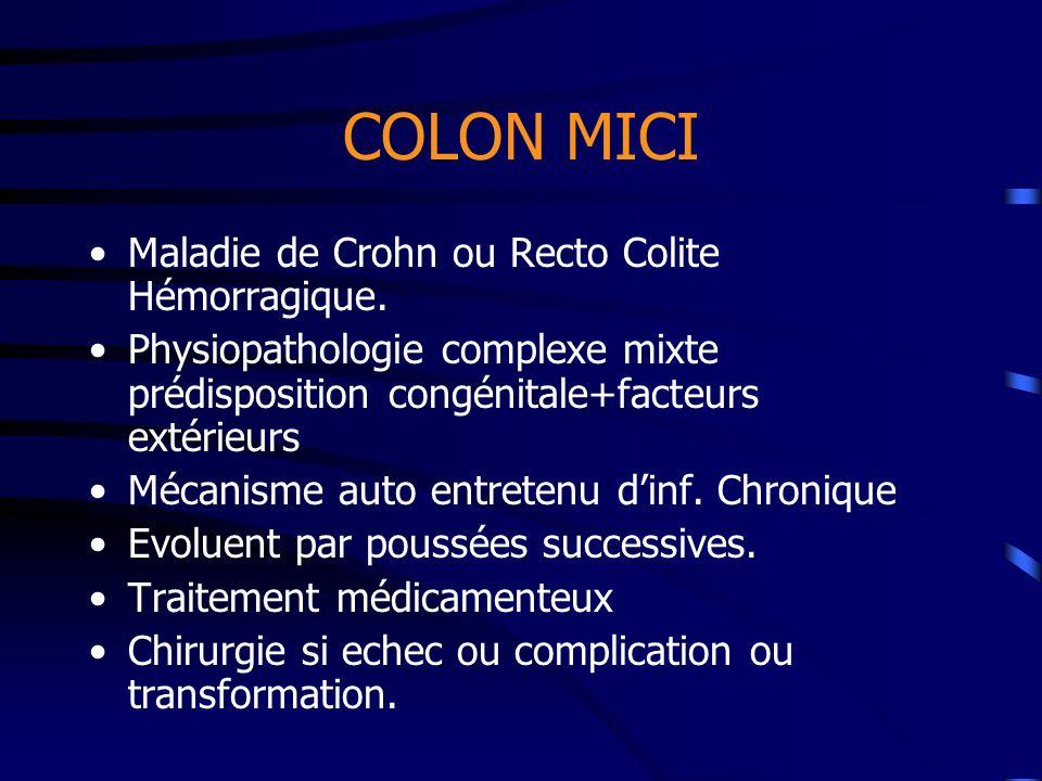 COLON MICI Maladie de Crohn ou Recto Colite Hémorragique.