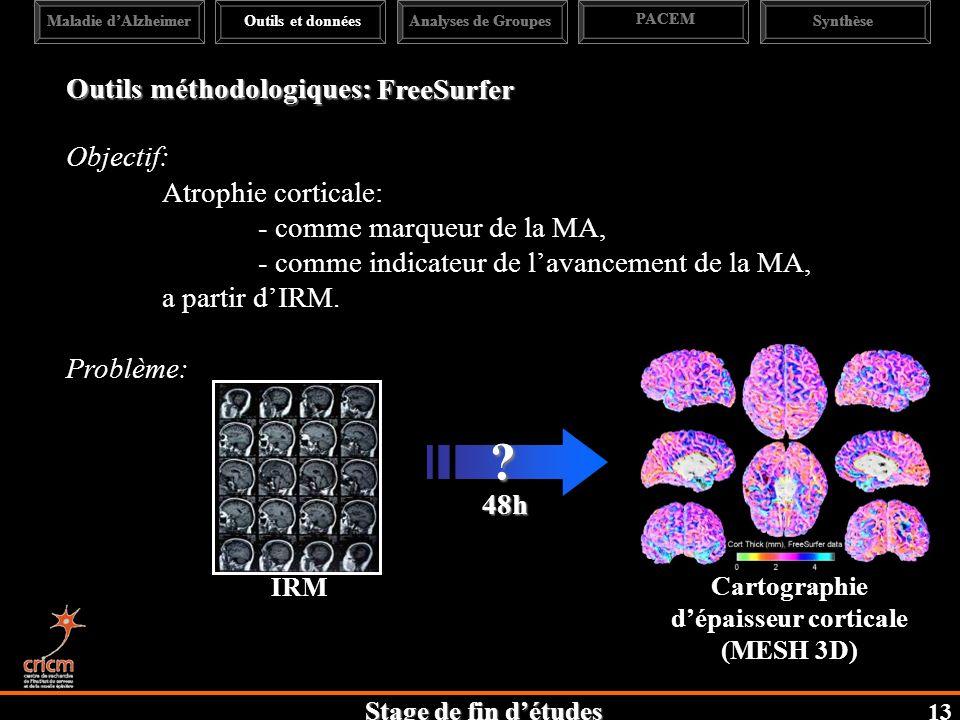 Cartographie d'épaisseur corticale