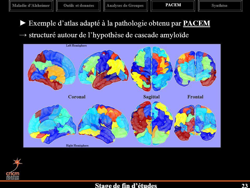 ► Exemple d'atlas adapté à la pathologie obtenu par PACEM