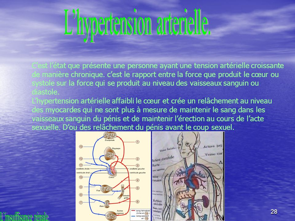 L'hypertension arterielle.
