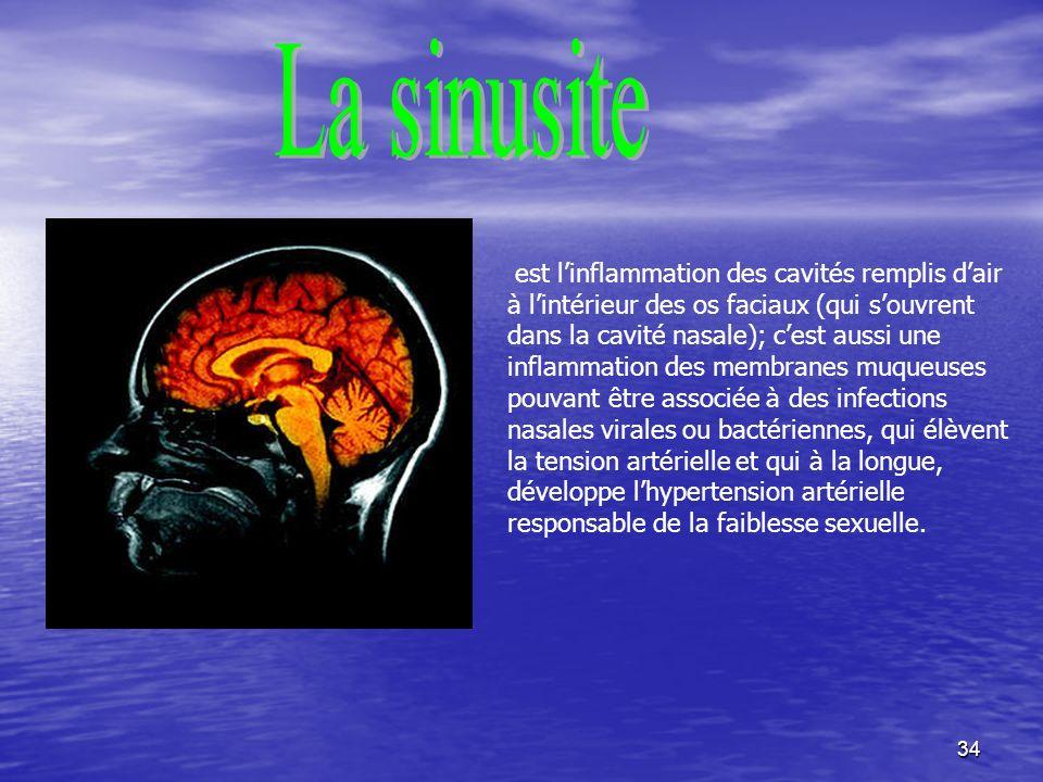 La sinusite