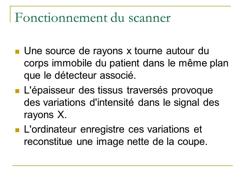 Fonctionnement du scanner