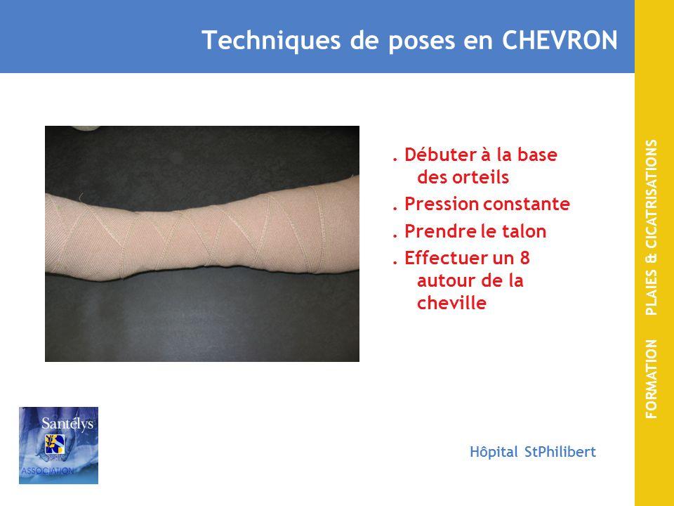 Techniques de poses en CHEVRON