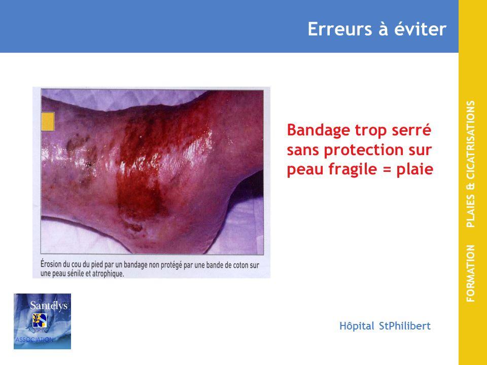 Erreurs à éviter Bandage trop serré sans protection sur