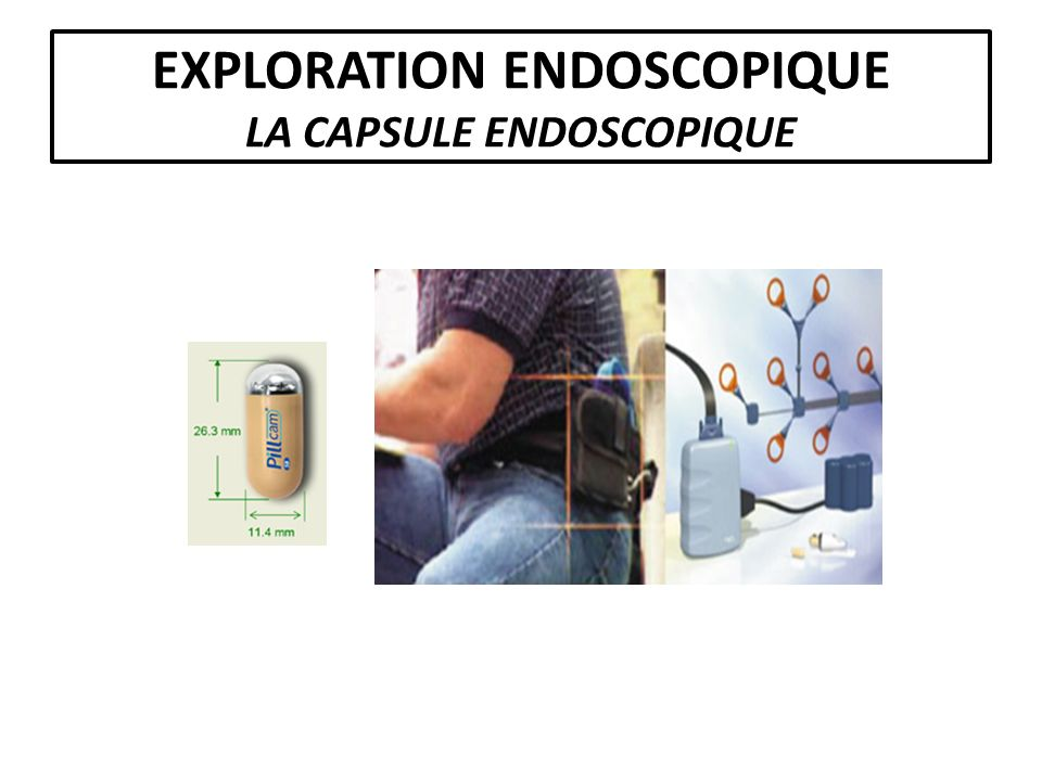 EXPLORATION ENDOSCOPIQUE LA CAPSULE ENDOSCOPIQUE