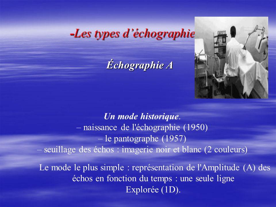-Les types d'échographie