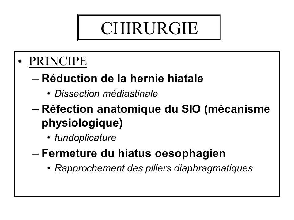 CHIRURGIE PRINCIPE Réduction de la hernie hiatale