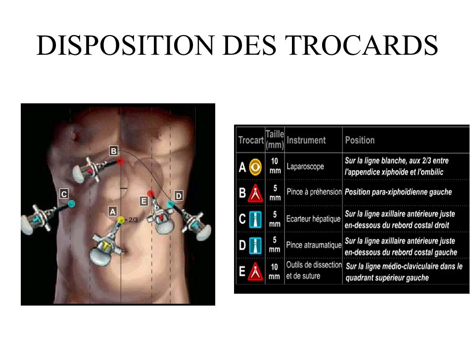 DISPOSITION DES TROCARDS