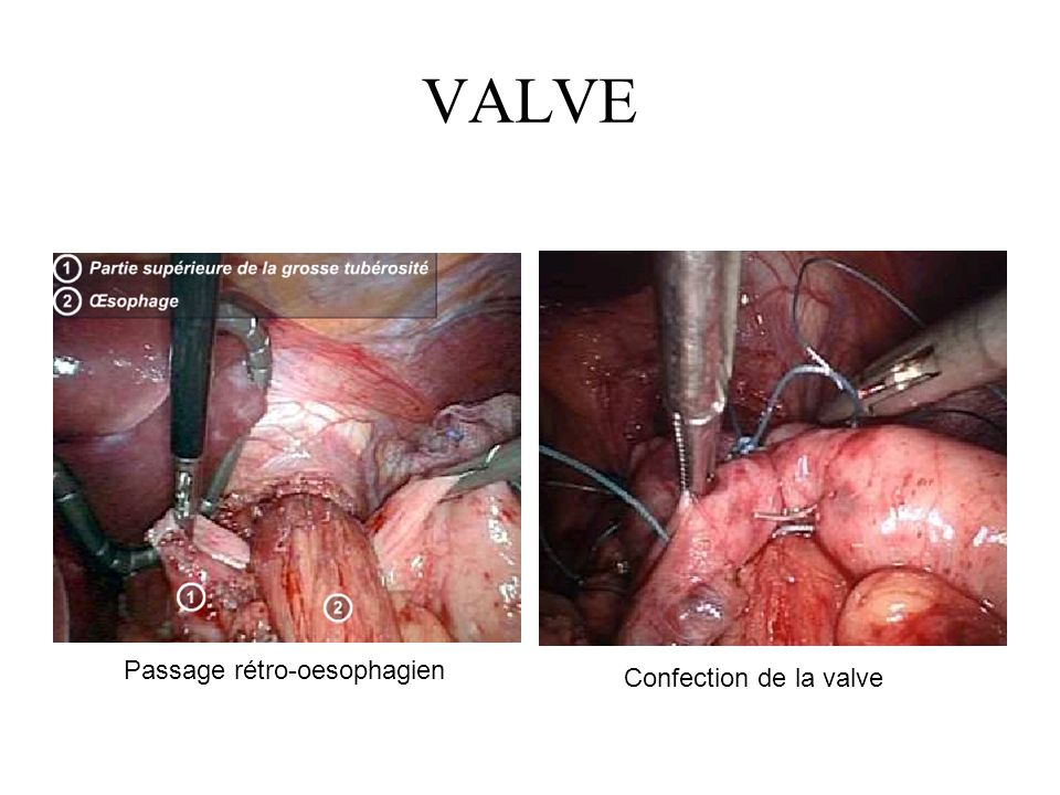 VALVE Passage rétro-oesophagien Confection de la valve
