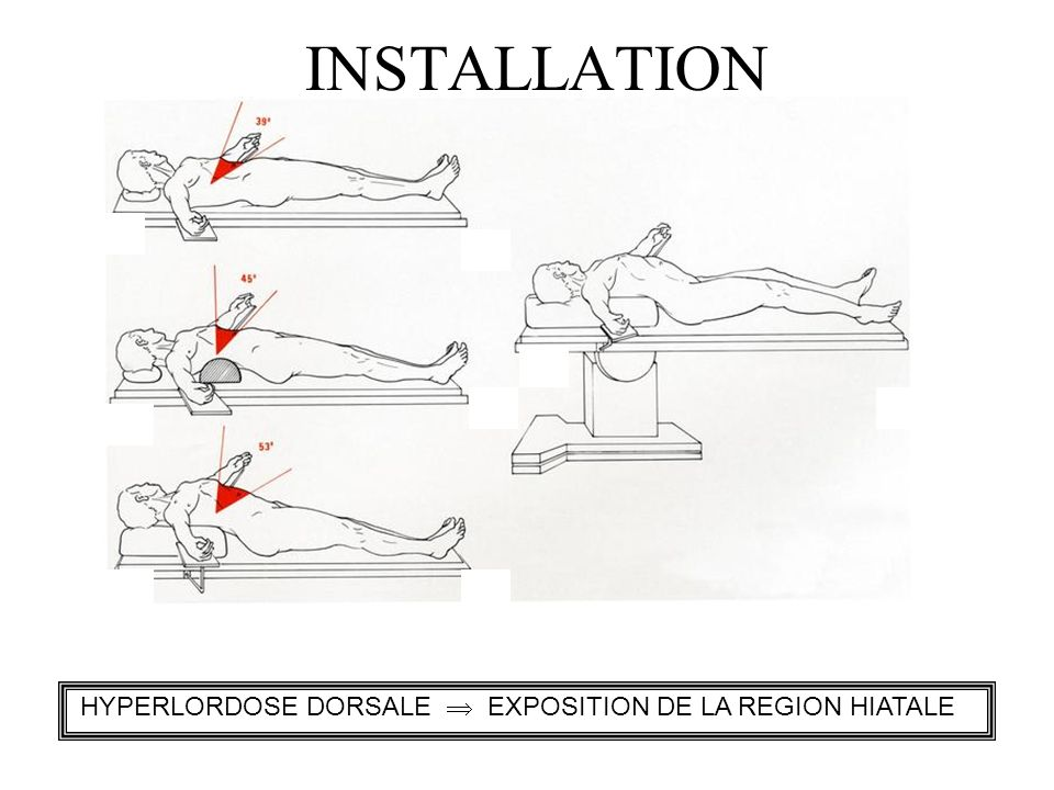 INSTALLATION HYPERLORDOSE DORSALE  EXPOSITION DE LA REGION HIATALE