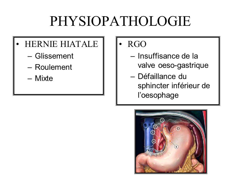 PHYSIOPATHOLOGIE HERNIE HIATALE RGO Glissement Roulement Mixte