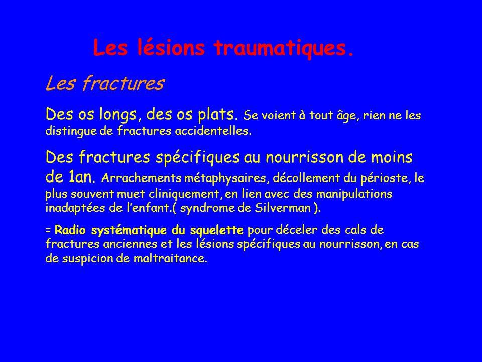 Les lésions traumatiques. Les fractures