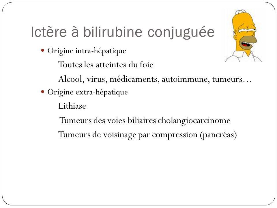 Ictère à bilirubine conjuguée