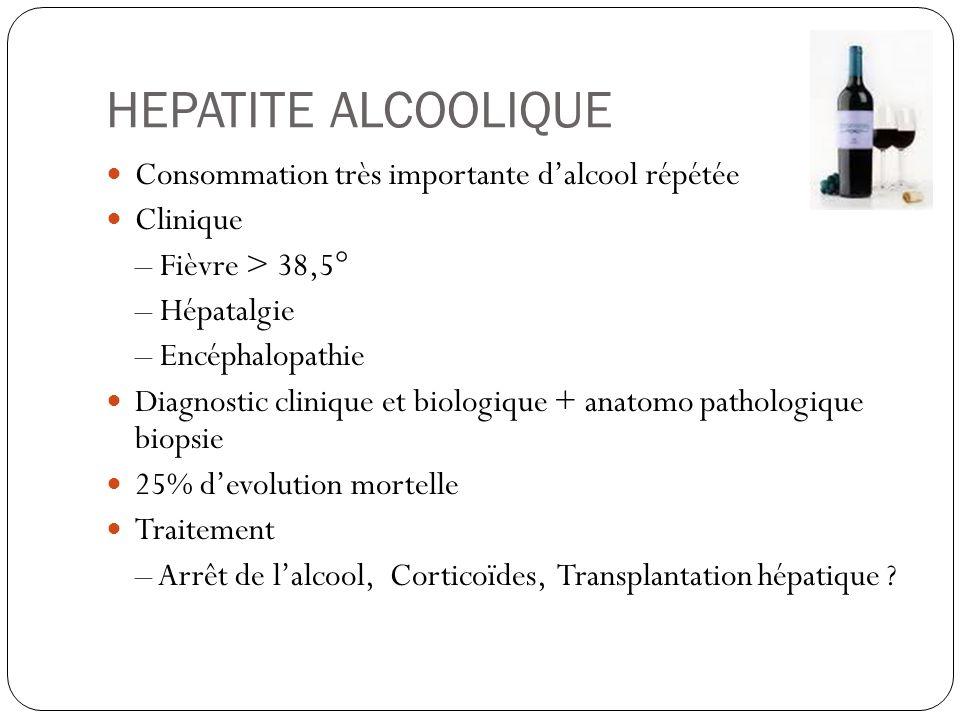 HEPATITE ALCOOLIQUE Consommation très importante d'alcool répétée