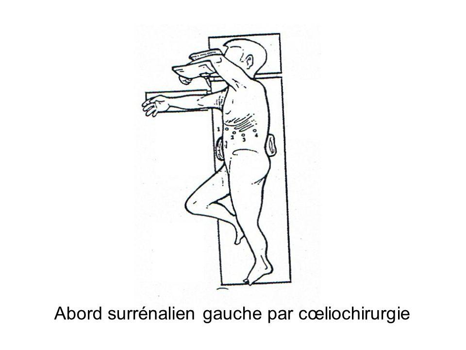 Abord surrénalien gauche par cœliochirurgie