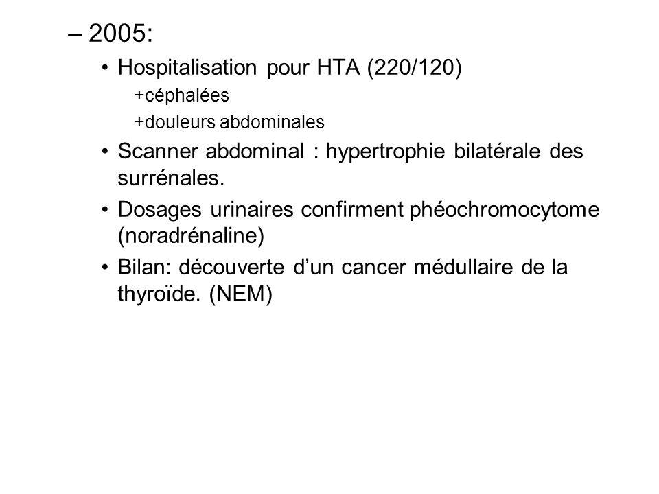 2005: Hospitalisation pour HTA (220/120)